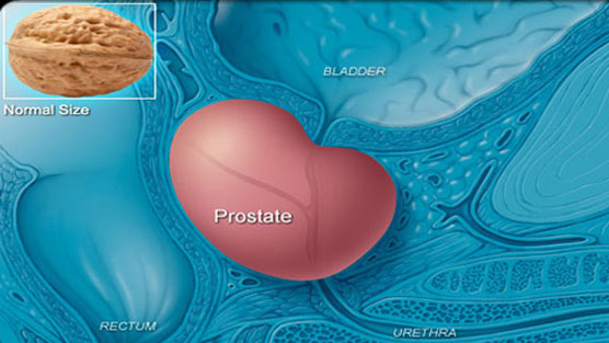 enlarged-prostate-treatment-turp-vs-greenlight-laser