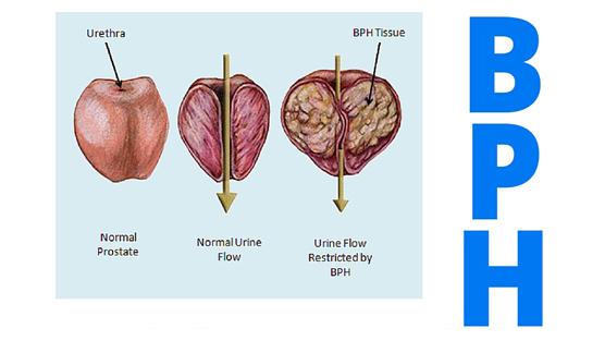 button-turp-vs-green-light-laser-for-benign-prostatic-hyperplasia-dr-david-samadi-explains-the-differences